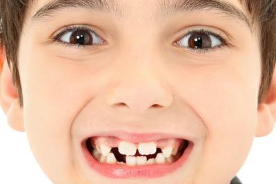 10reasons_to_choose_dental_implants