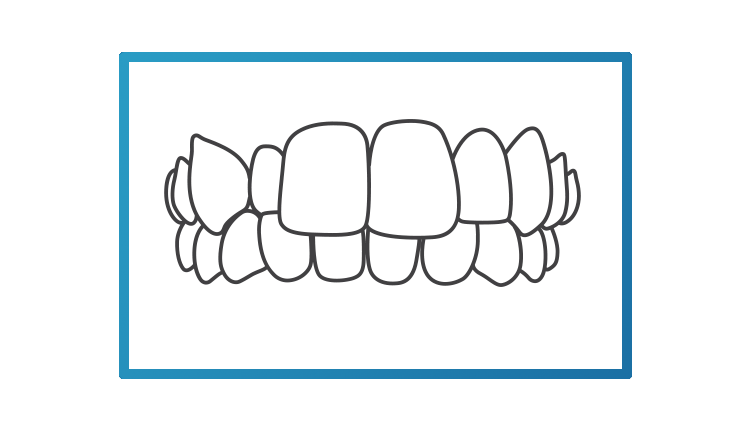 asimpleillustrationofacrossbite